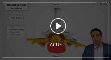 ACDF (Anterior Cervical Diskectomy and Fusion)