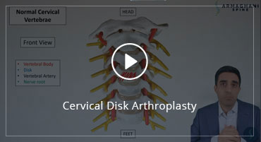 Cervical Disk Arthroplasty