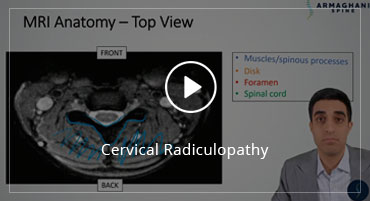 Cervical Radiculopathy