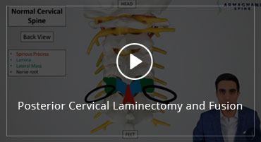 Posterior Cervical Laminectomy and Fusion